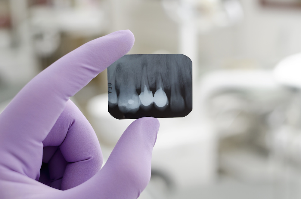tooth loss in seniors